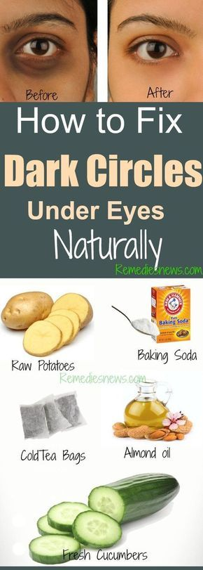 How to Fix Dark Circles Under Eyes Naturally at Home -   18 makeup Beauty remedies ideas