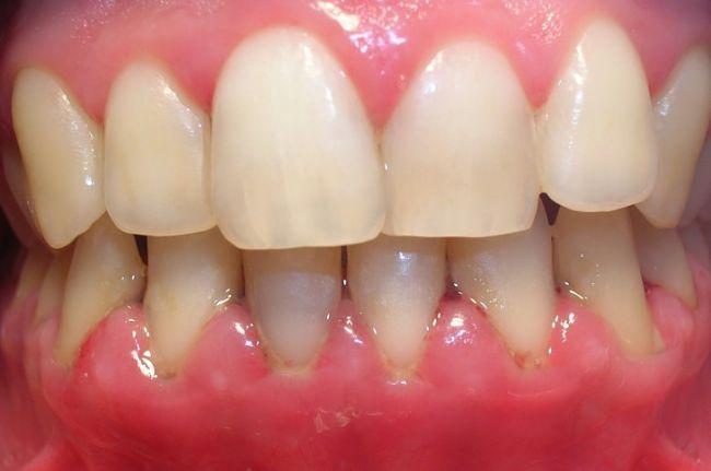 hay cambios naturales en el cuerpo que pueden causar gingivitis tales como la diabetes, la baja inmunidad, el embarazo, el uso de medicamentos, deficiencia