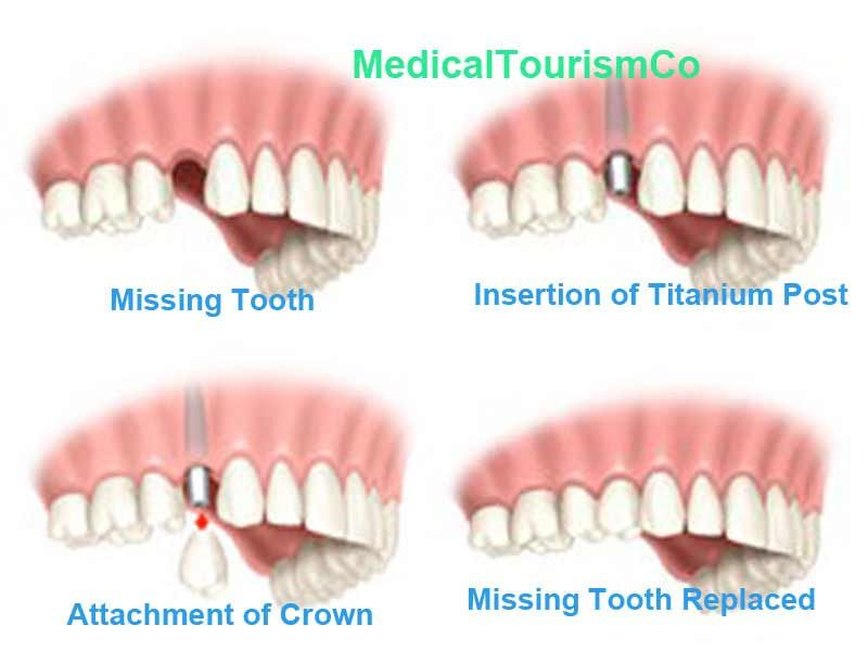 Dental Implant Quotes New Immediate Load Or Same Day Dental Implant Procedure In Costa Rica