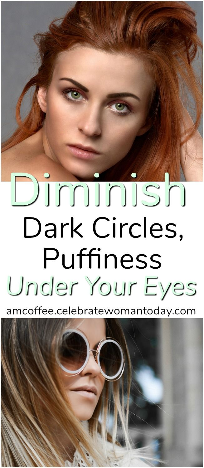 HOW-TO Diminish Dark Circles And Bags Under Eyes #AMCoffee ...