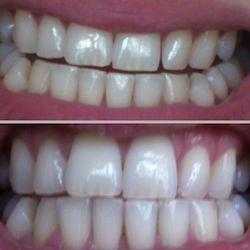 Естетика зуба