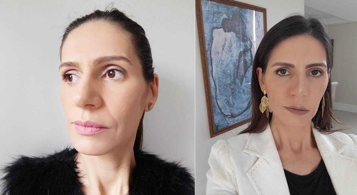 Rinoplastia Antes E Depois Da Minha Cirurgia Tao Desejada Com