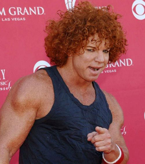 Carrot Top Before And After Plastic Surgery Browlift Botox Photos