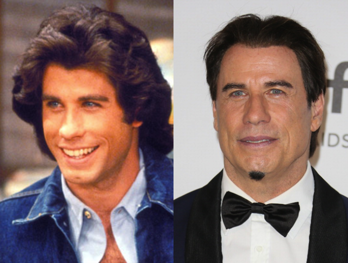 John Travolta Reasons Why To Not Get Plastic Surgery Ps