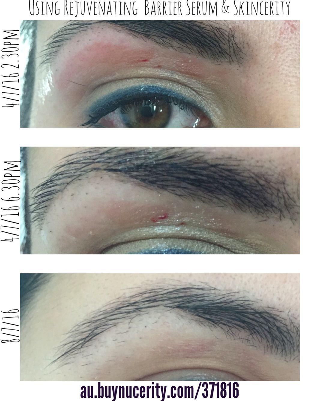 Amazing Eyebrow Wax Gone Wrong Using Skincerity To Heal Karma