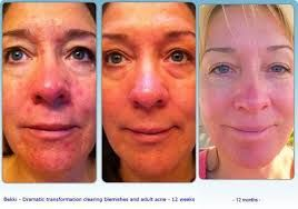 luminesce - Google Search