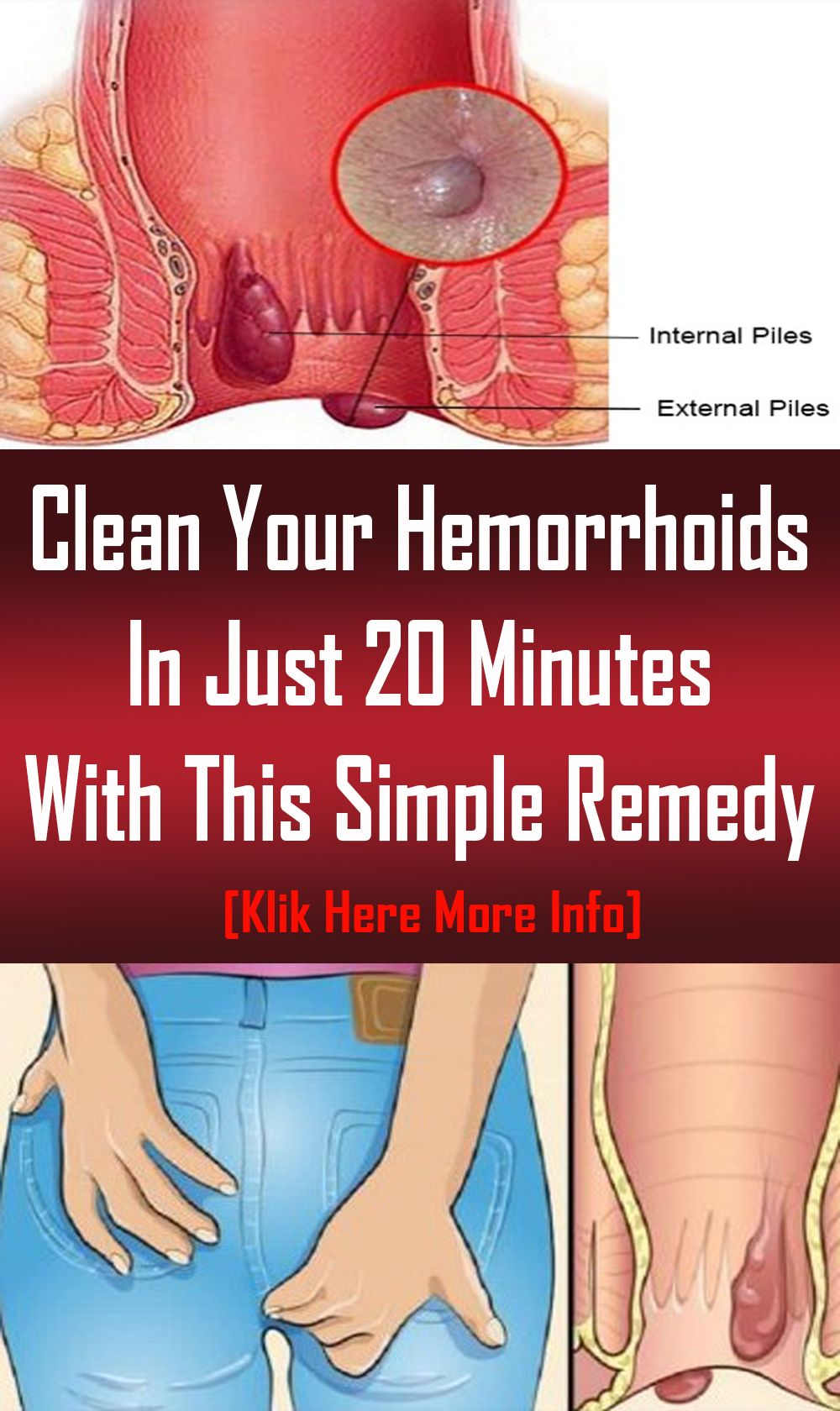 Clean Your Hemorrhoids In Just 20 Minutes With This Simple Remedy Hemorrhoids Remedies Medical Jokes
