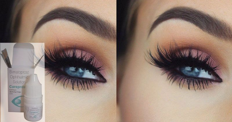 Improve Your Eyelash Length With Help Of Careprost Eye Drops Buy