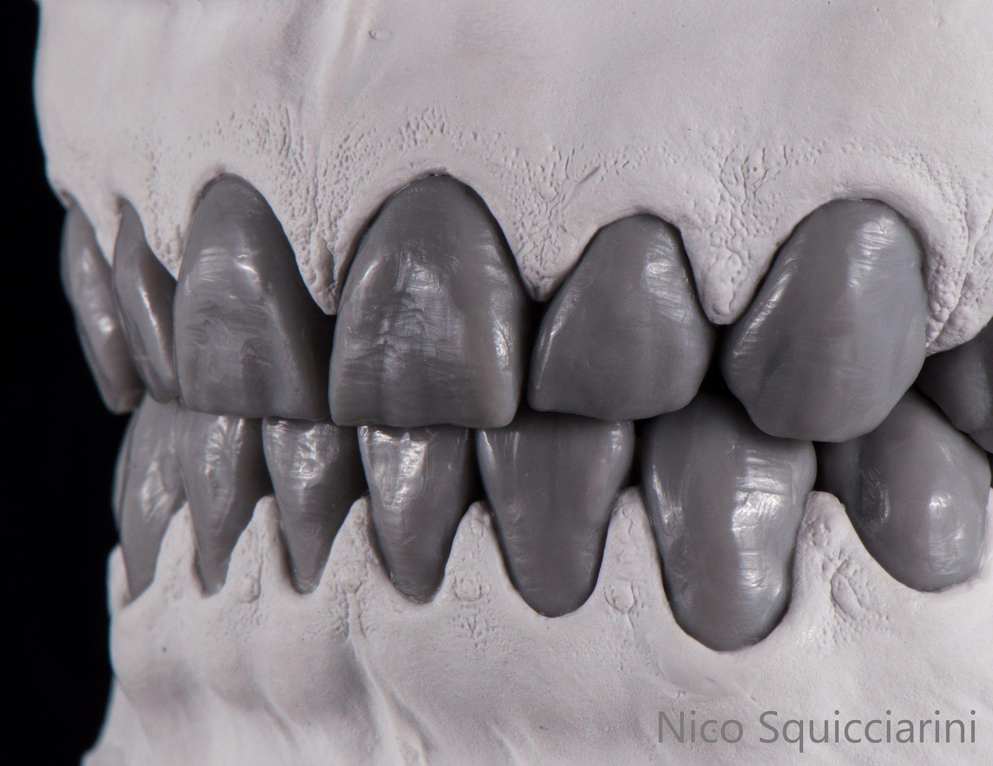 Pin by Anton Popov on zahn | Pinterest | Dental and Dental anatomy