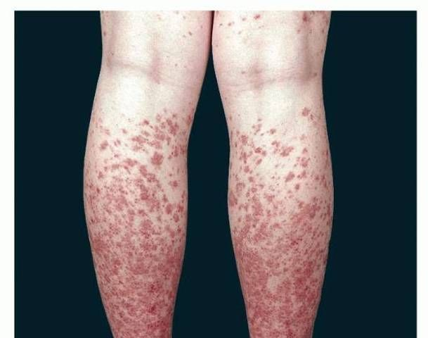 Idiopathic thrombocytopenic purpura (ITP) is a blood