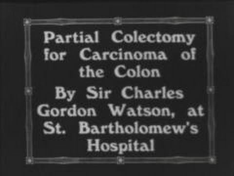 Partial colectomy for carcinoma of the rectum (1933)