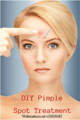 Diy Pimple Spot Treatment Recipe Using Young Living Purification