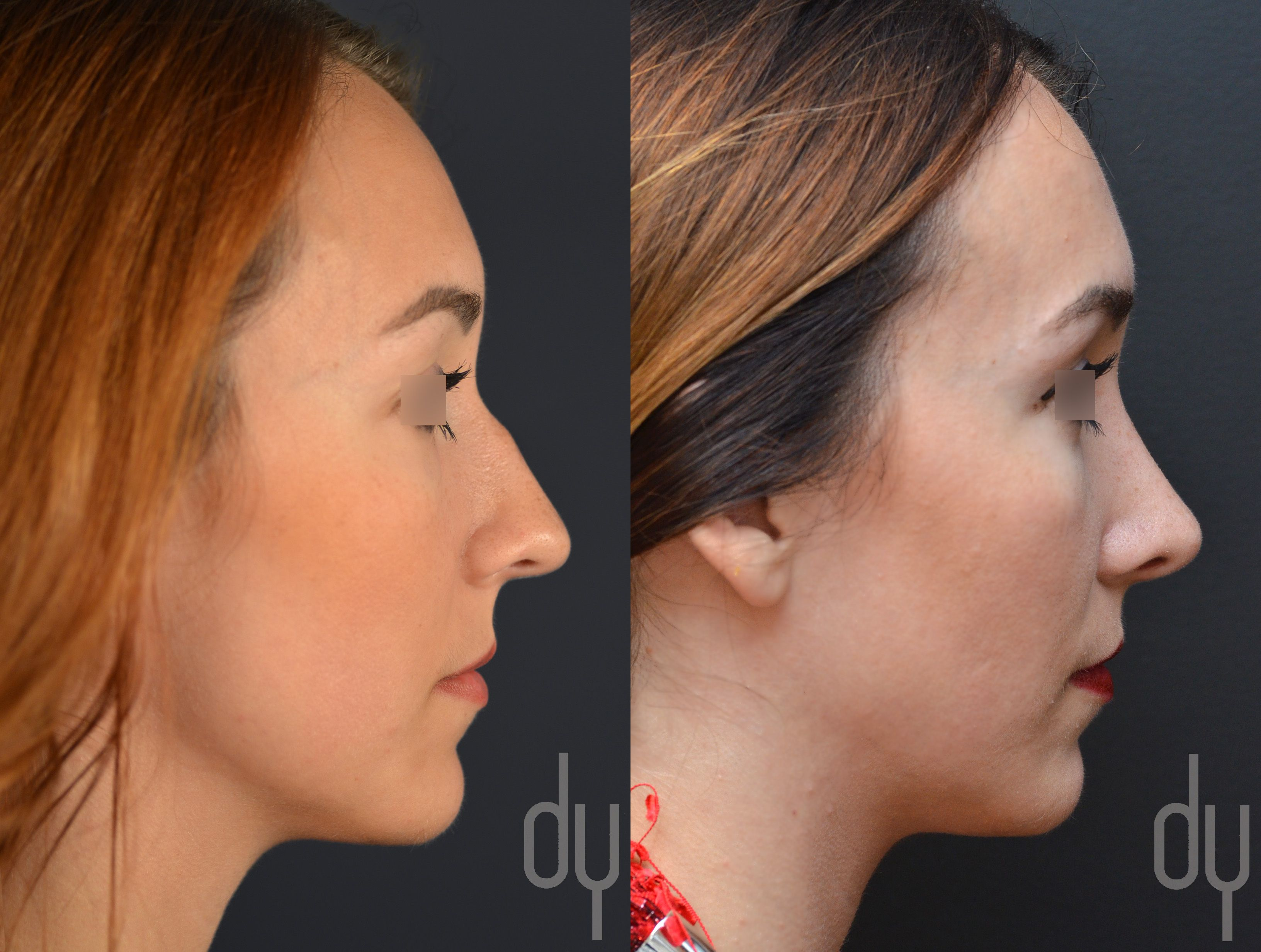 Before And After Primary Open Rhinoplasty And Septoplasty With Dorsal Hump Reduction And Tip Refi Rhinoplasty Nose Plastic Surgery Rhinoplasty Before And After