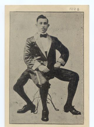 Francesco Lentini, the three-legged man