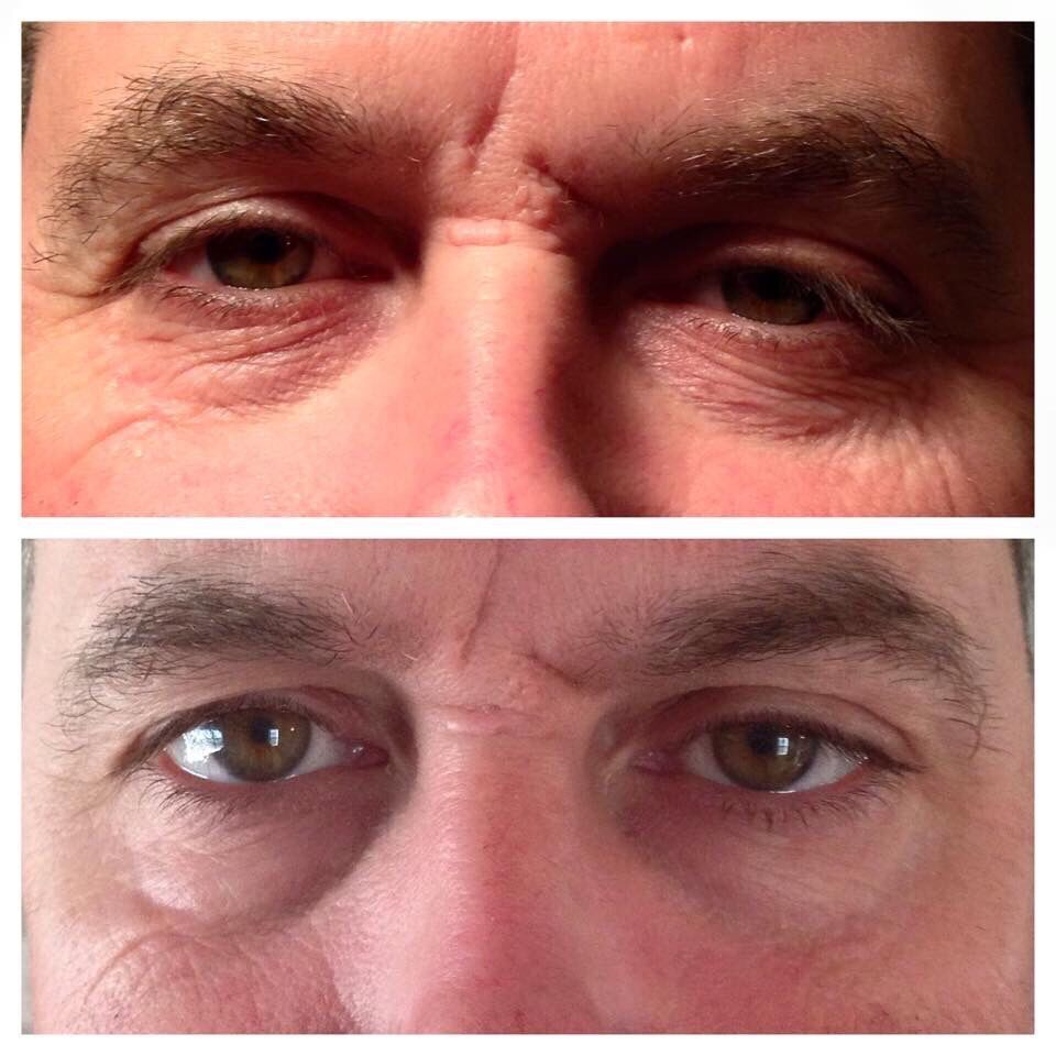 RODAN+FIELDS before and after of our ACUTE CARE!! Click on