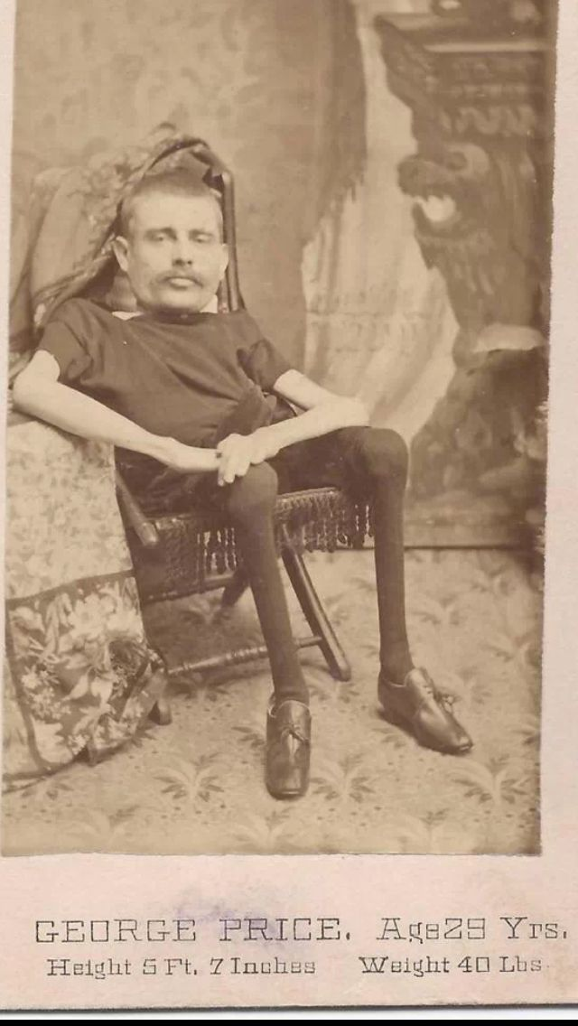 George Price, sideshow living skeleton CDV from 1880s.