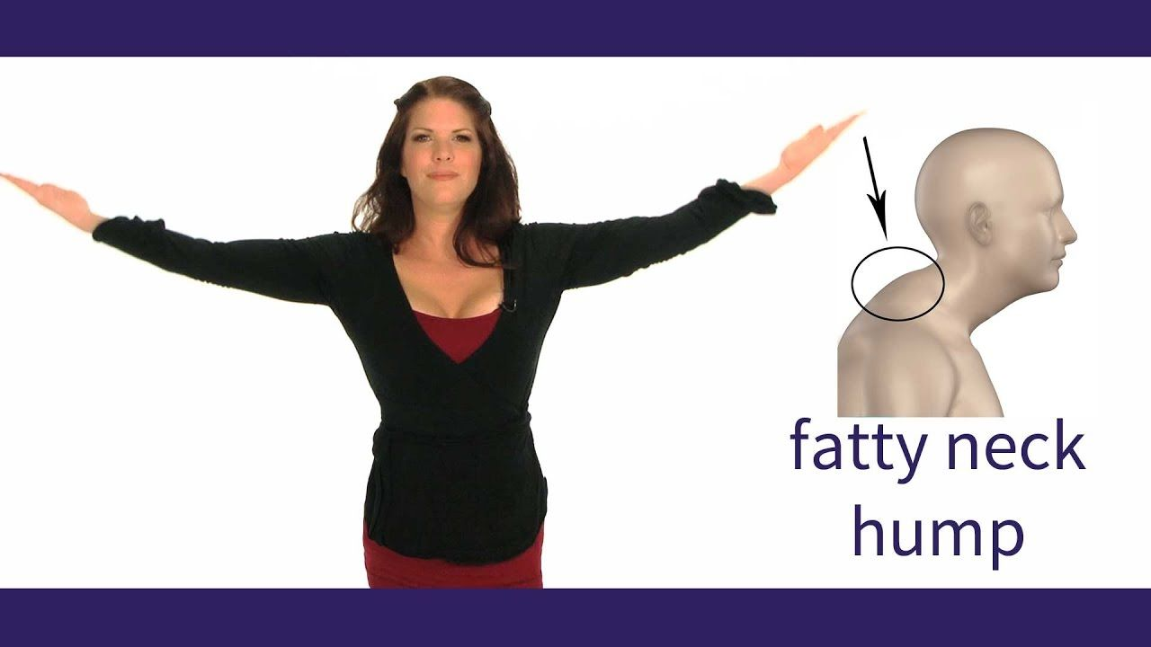 Posture Coach Tells How To Get Rid Of Neck Hump Youtube Neck Hump Neck Exercises Posture Exercises