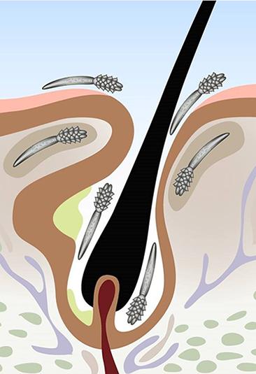infestation de mites