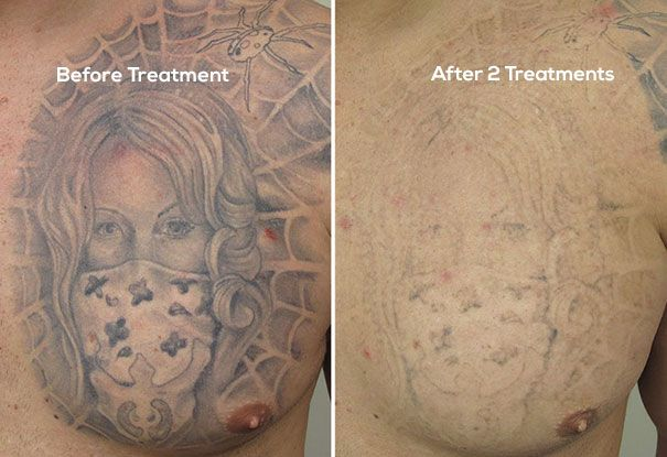 One Of The Best Laser Tattoo Removal Clinic In Mumbai Cutispilus