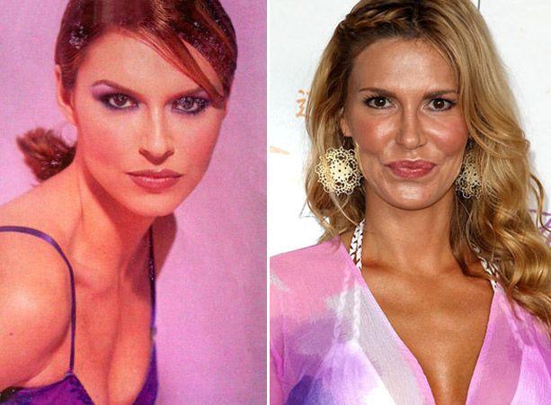 Celebrity Plastic Surgeons of Beverly Hills | Netflix