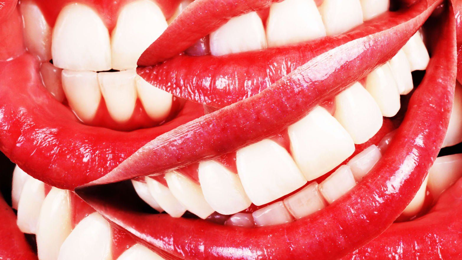 Diy teethstraightening leaves dentists and some consumers