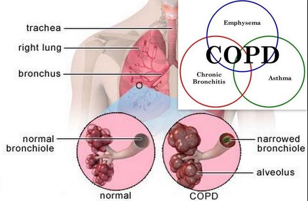 Symptoms of #copd persistent cough breathlessness with