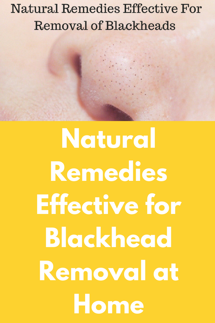 natural remedies effective for blackhead removal at home blackheads