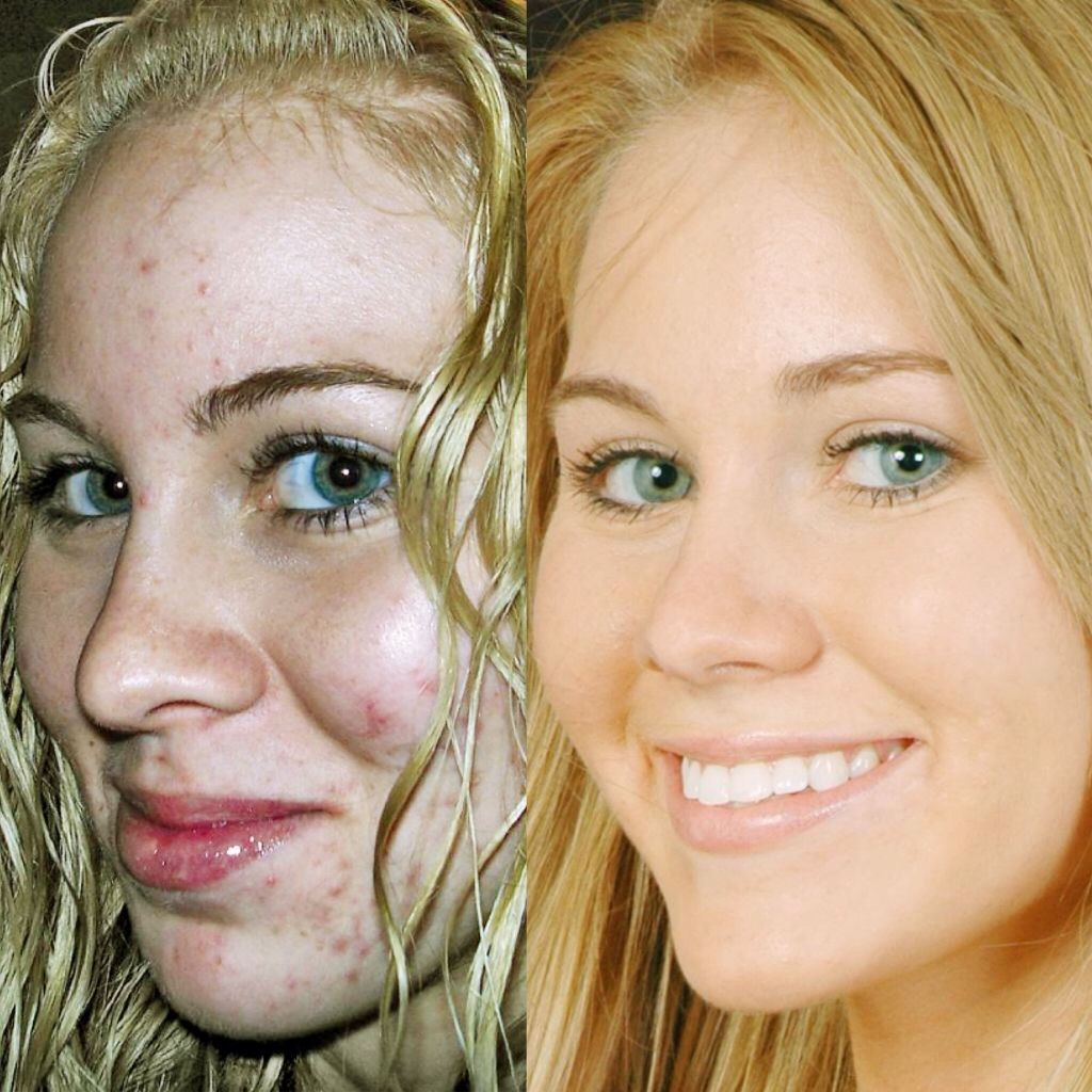 Before and after | Sulfur for Acne | Sulfur acne, Septum ring, Rings