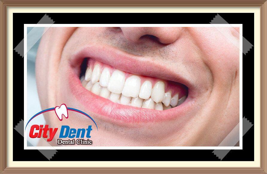 تعال نتعرف على كل ما يخص زراعة الأسنان فعلى الرغم من بساطة الفكرة إلا إنها عملية دقيقة وأي نسبة خطأ فيها قد يؤدي إلى مشكلة كبيرة Dental Clinic Dental Clinic