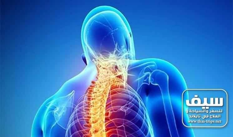 علاج الإنزلاق الغضروفي بدون جراحة في تايلاند