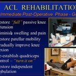 Current Concepts in the Rehabilitation of ACL Injuries