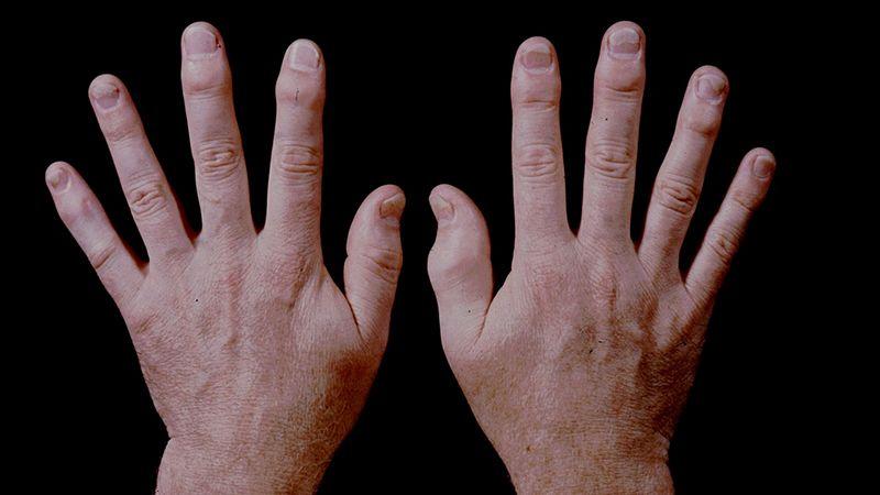 リウマチ 初期 症状 リウマチ闘病記 - アメーバブログ(アメブロ)