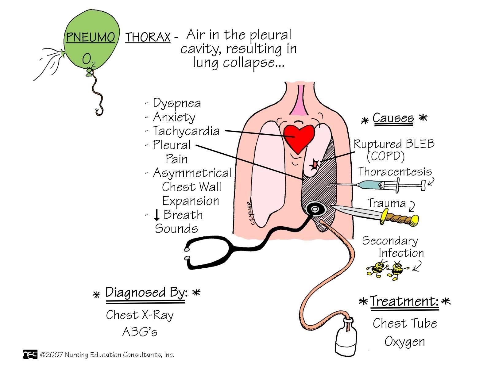 Pneumothorax, CJ Miller | Nursing | Pinterest