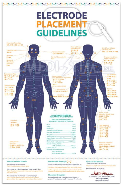 Electrode Placement Guidelines  Tens Electrode Chart  MediStim