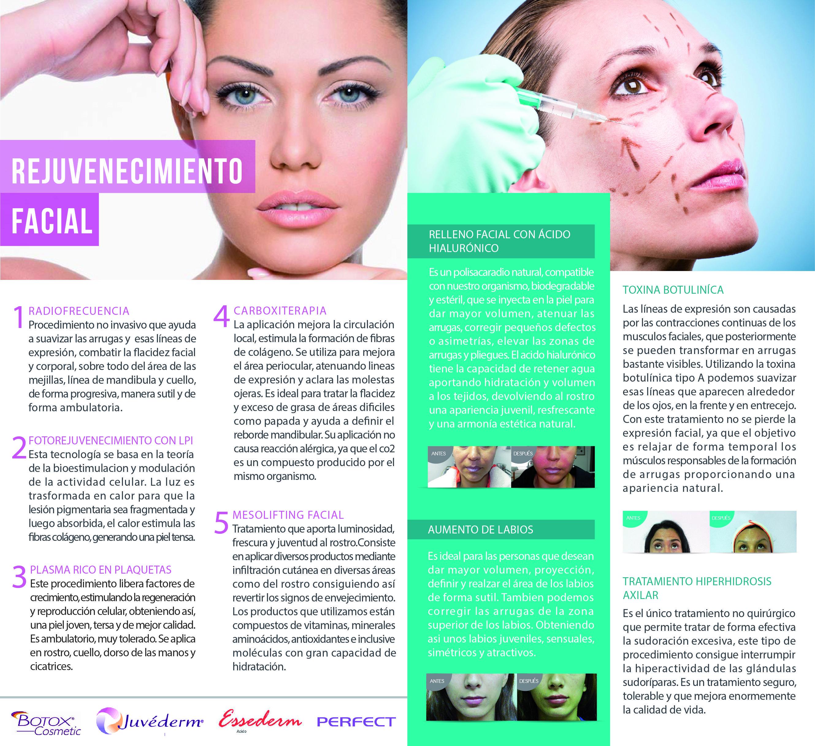 Medicina Estetica Relleno facial con acido hialuronico, aplicación ...