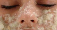 En finir rapidement avec les tâches et les pigmentations sur votre visage avec cet ingrédient naturel