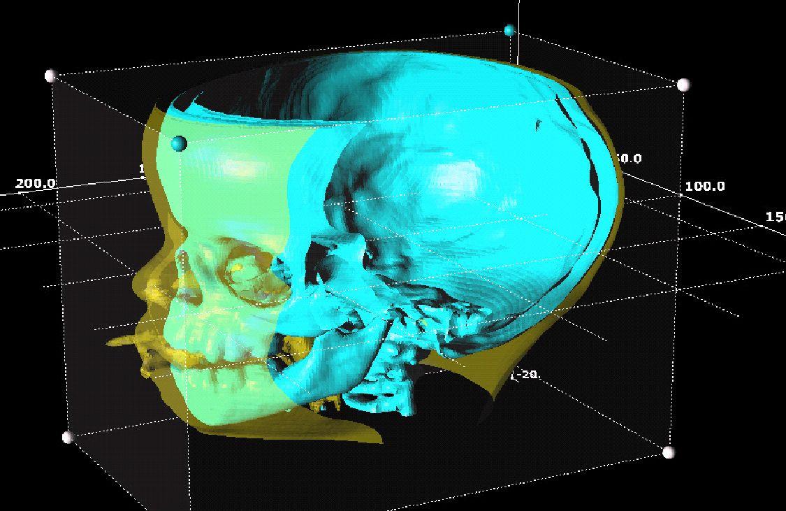 CT_image_head.jpg (1125×731) Image, Visualisation, Graphic