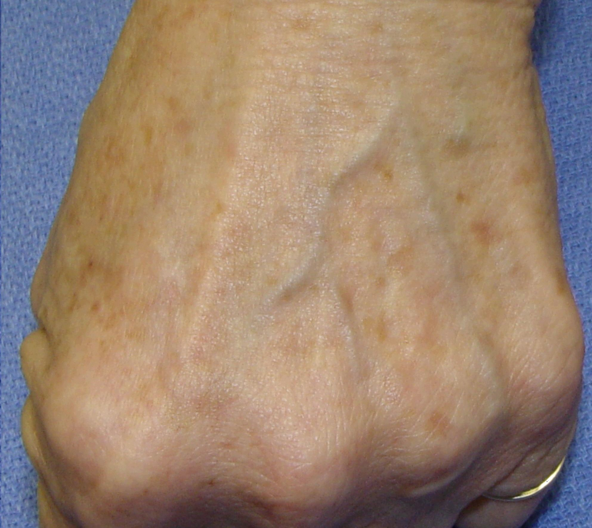 Superior Freckles And Brown Spots? Hyperpigmentation Can Occur On Any Area Of The  Body, Especially Those Exposed To Light
