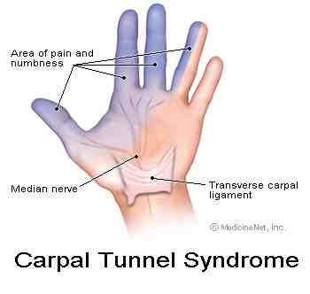 HELP !!! I am experiencing numbness, tingling, and burning in my arms. This  has been going on since abou…   Carpal tunnel, Carpal tunnel syndrome,  Natural remedies