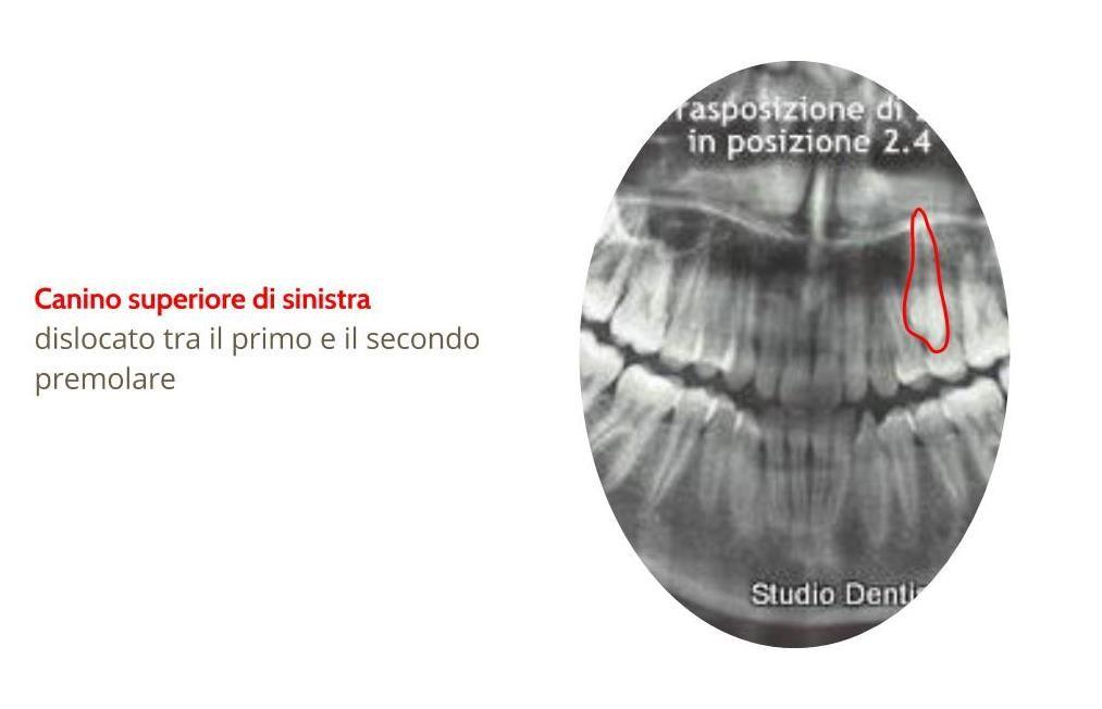 Casi clinici ortodontici Trasposizione dentale (2.3) http://www.studiodentisticobalestro.com/2012/07/video-educational-trasposizione-dentale.html