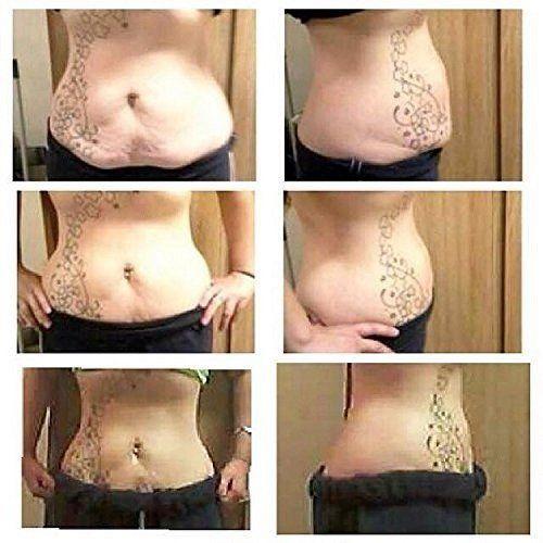 Carolinas weight loss gastonia nc image 2