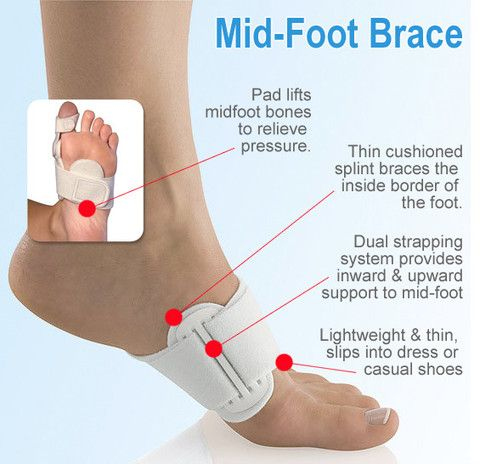how to look after a sprained foot
