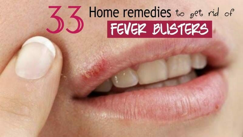 33 amazing home remedies to get rid of fever blisters