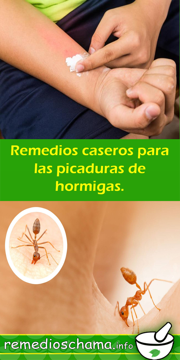 Remedios Caseros Para Las Picaduras De Hormigas Remedios Caseros Natural Picadura Hormigas Alergia Fruit Food Cantaloupe