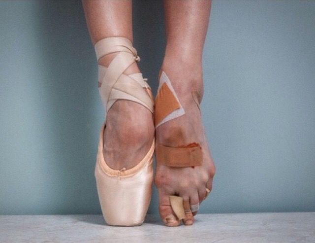 Ballerina feet - Picture of damage the ballet does to the feet of  ballerinas. | Images | Pinterest | Ballerina, Dancing and Dancers