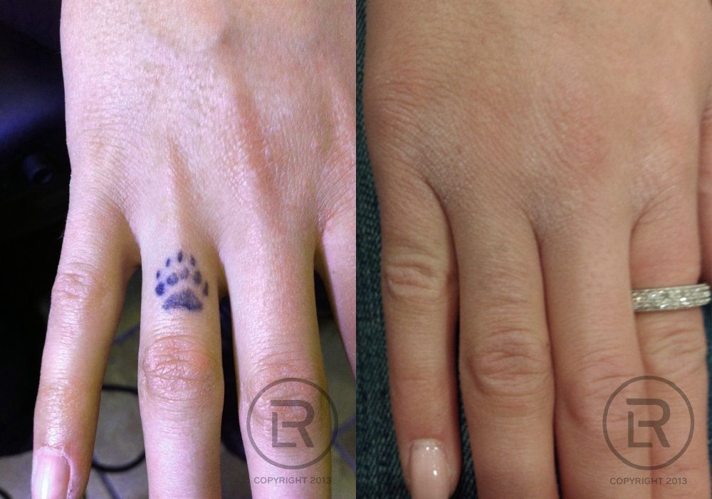 Laser Tattoo Removal performed by Renewal Laser Clinic. Minneapolis ...