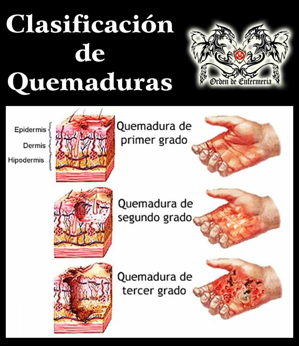 Clasificación de Quemaduras | Medicina | Pinterest | Salud, Physical ...