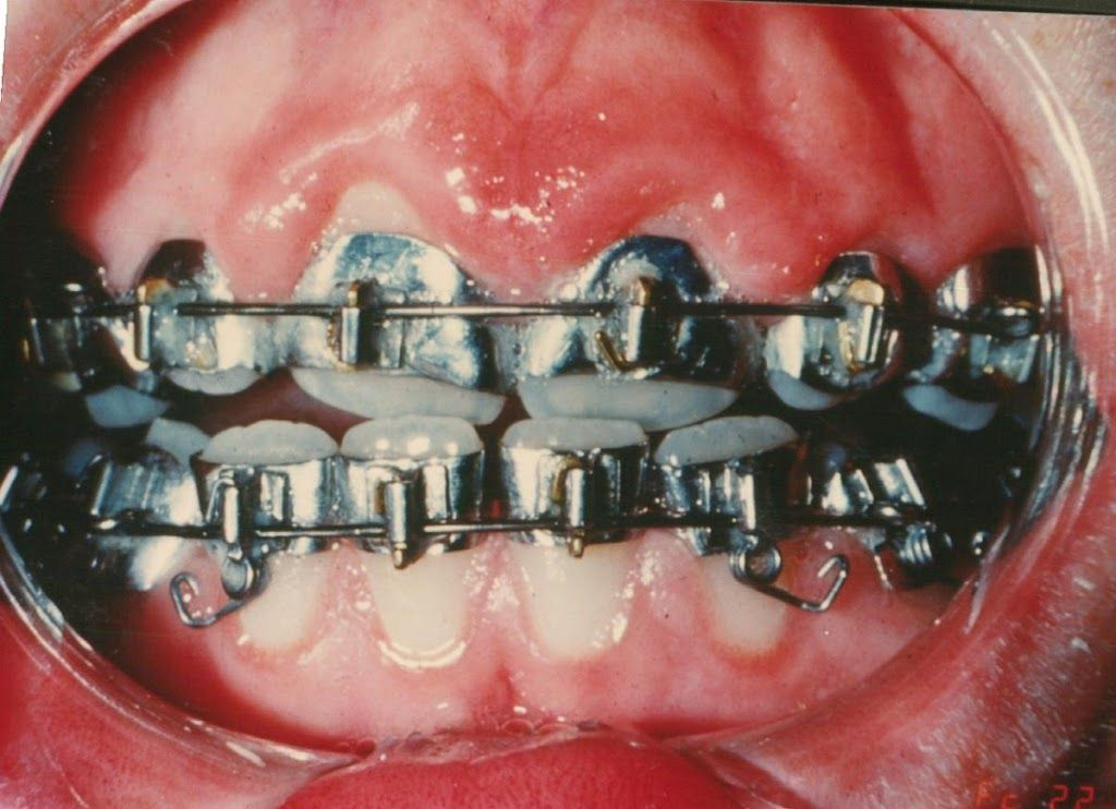 Orthodontic Braces From 1950 Or Sixties Brackets Are Held On