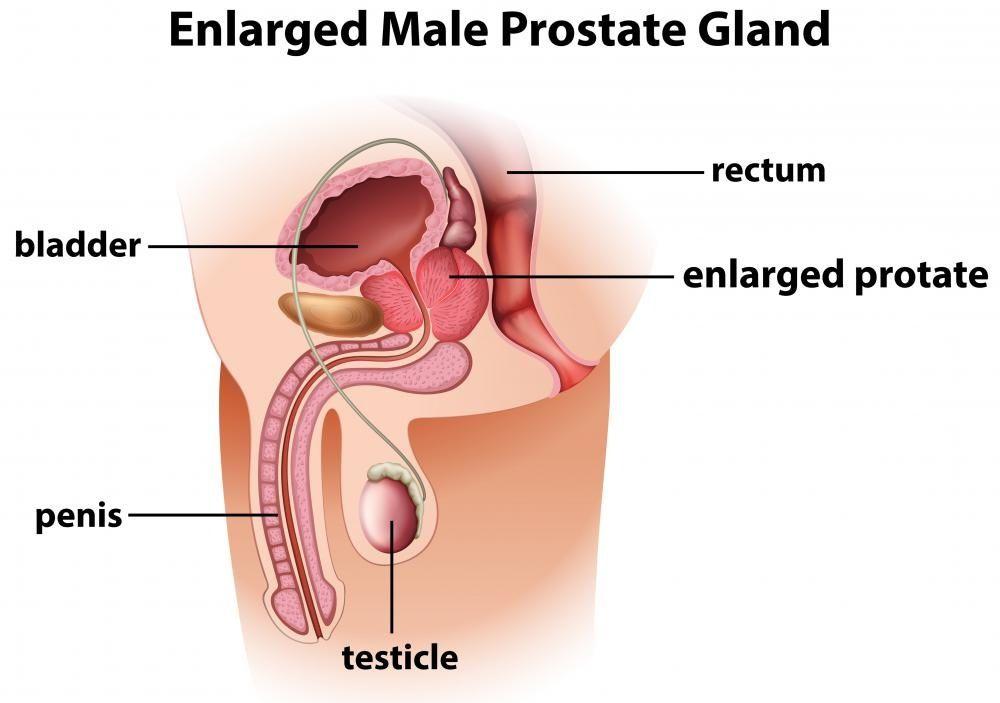 Prostate Gland Is A Walnut Shaped Gland Present Below The Bladder
