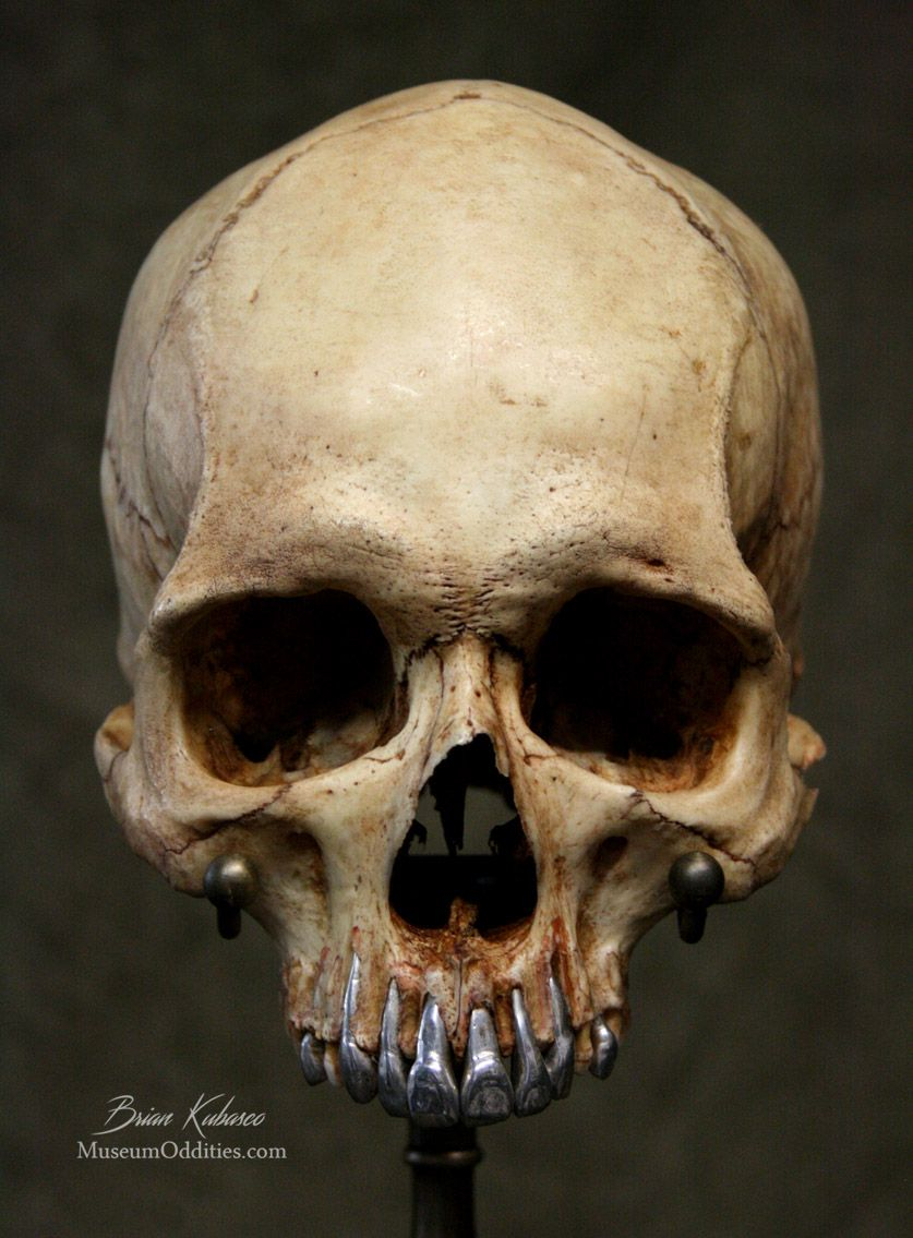 Real human skull with polished metal teeth and custom brass stand ...